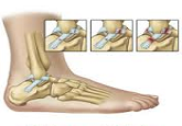Acute Ankle Inversion Sprain Protocol